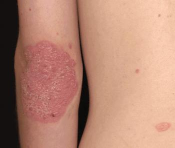 psoriasis on someones arm