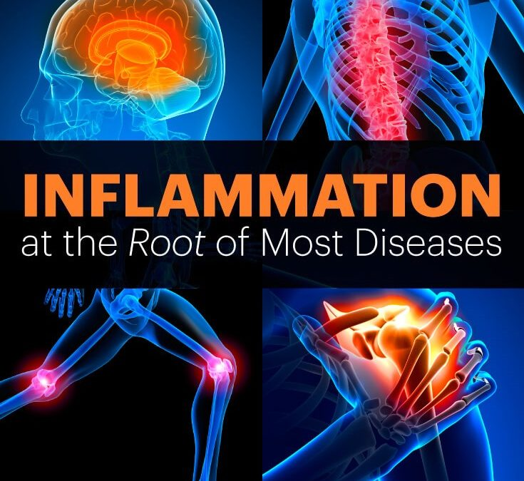 Inflammation at the root cause of most diseases