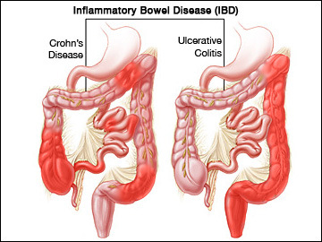 a diseased bowel