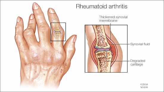 rheumatoid arthritis. a hand deformed